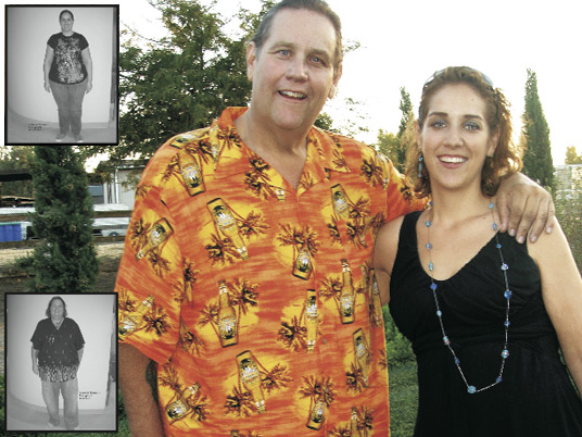 Marty and Rosalie, Before and After Bariatric Surgery