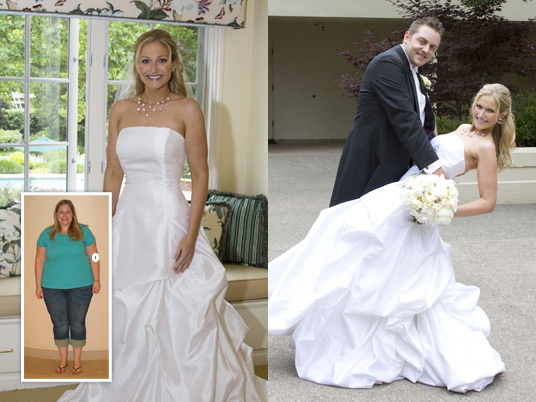 Brooke, Before and After Bariatric Surgery