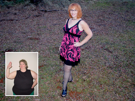 Christine, Before and After Bariatric Surgery