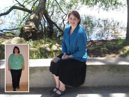 Laura, Before and After Bariatric Surgery