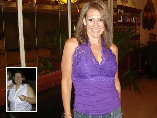 Maria, Before and After Bariatric Surgery