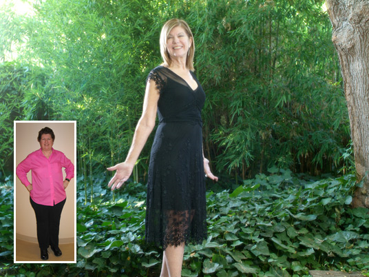 Marilyn, Before and After Bariatric Surgery